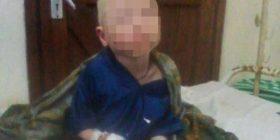 Djalit 6 vjeçar ia prenë dorën sepse ka lëkurë të pasur