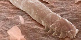 Nën lëkurën e fytyrës sonë rriten gjallesa mikroskopike!