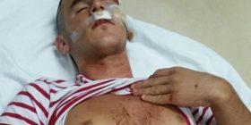"""""""Komitët"""" sulmojnë disa shqiptarë nga Batinca e Shkupit (Foto/Video)"""