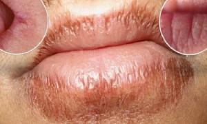 Përbërësi që shëron buzët e plasaritura!
