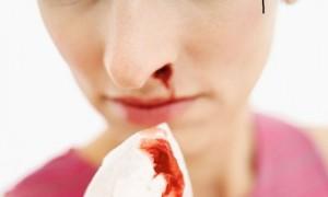 Çfarë e shkakton gjakderdhjen nga hundët?