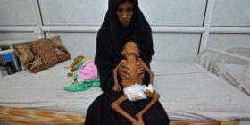 Ky vogëlush po vdes nga uria (Foto)