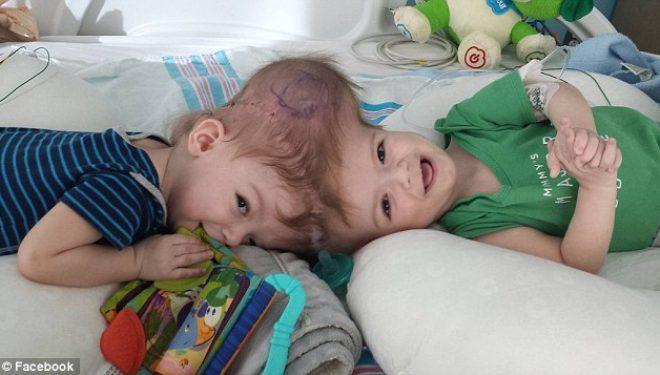 Binjakët me koka të ngjitura, i hapin sytë për të parën herë pas operacionit (Foto)