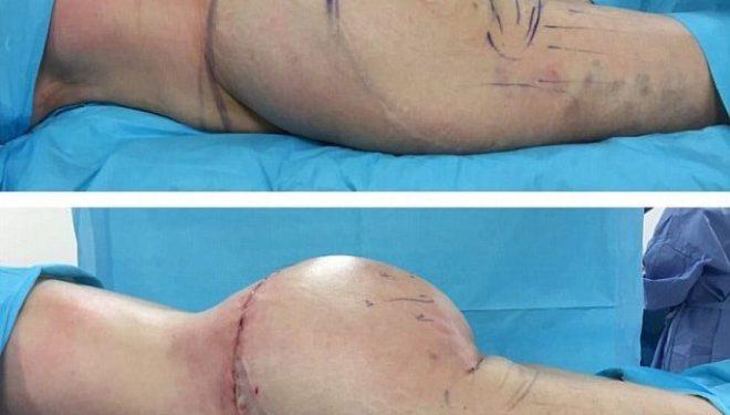 Torturat e femrave për të pasur vithe më seksi (FOTO+18)