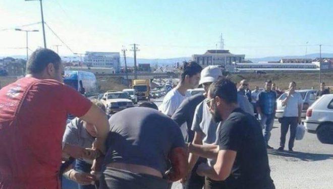 Taksistët në 'Veternik' rrihen dhe theren më thika (Foto)