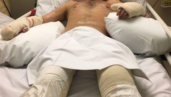 Shkon në spital me grip e kthehet pa këmbë