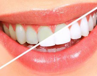 Pasi ta mësoni këtë, ju kurrë më nuk do t'i zbardhni dhëmbët