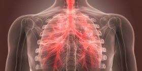 Kura natyrale për trajtimin e bronkitit