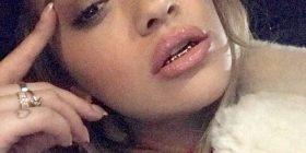 Rita Ora me proteza në dhëmbë