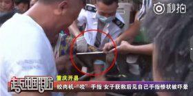 Zjarrfikësit ia shpëtojn dorën gruas, i kishte ngelë në makinën për bluarjen e mishit (Video)