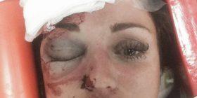 Publikohen fotot e rrahjes që i tronditi të gjithë (Foto)