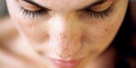 Si t'i reduktoni njollat e akneve në fytyrë