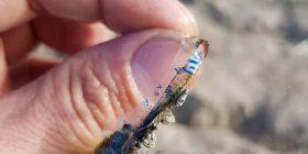 Kapi peshkun me një shenjë të pazakontë në trup, e kuptoi se unaza e plastikës së bidonëve të ujit i është ngulur në mish (Foto)