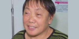 Për vite më radhë i rridhte gjak nga hunda dhe duronte dhimbje të mëdha, mjekët u habitën kur i gjetën dhëmbin e rritur në hundë (Foto)
