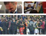 Gunes dërgohet në spital, gjithçka nisi nga Pepe, këto janë momentet e përleshjes (Video/Foto)