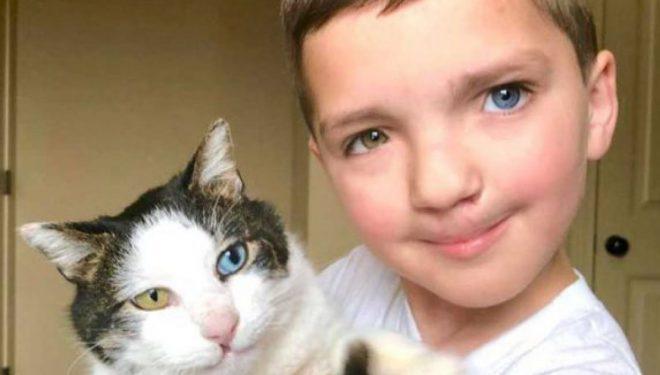 Fëmija që ishte viktimë e bulizmit, gjeti ngushëllim në macen me të jetën gjendje të rrallë (Foto)