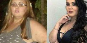 Dikur kishte 150 kilogramë, pas ndërhyrjes kirurgjikale i humbi 90 kilogramë – tani po habiten të gjithë me linjat e saj trupore (Foto)