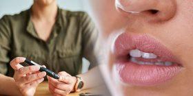 Femrat që vuajnë nga diabeti janë më të rrezikuara nga kanceri i gojës