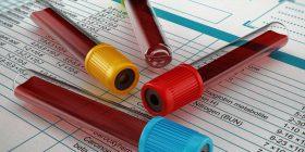 Rregullat para se të jepni gjakun për analiza, të cilat shumica nuk i dinë – për këtë shkak rezultatet shpesh nuk janë valide!