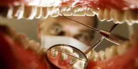 Dentisti britanik tregon rastet më ekstreme, çfarë i ndodhë dhëmbëve kur shmangen vizitat mjekësore (Foto)