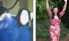 Mjekët i kishin thënë të operohet për shkak të mbipeshës, refuzoi ta bëjë një gjë të tillë – me dieta dhe ushqim të shëndetshëm arriti t'i humb 108 kilogramë (Foto/Video)