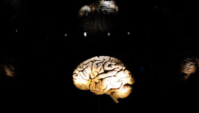 Dhjami i tepërt rreth belit nënkupton se keni madhësi më të vogël të trurit