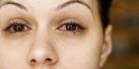 Sytë na tregojnë prej çfarë sëmundjesh vuajmë