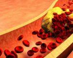 Ushqimet me sasi të lartë të kolesterolit nuk shkaktojnë sëmundje të zemrës