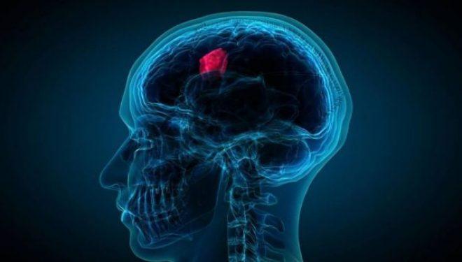 Mutacionet e tumoreve përcaktojnë suksesin e imunoterapisë