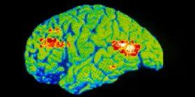 Zbulohet ilaçi më efektiv kundër depresionit dhe vetëvrasjeve