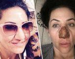 Gjithçka nisi me një skuqje, gruas i zhvillohet infeksioni i rrallë në hundë