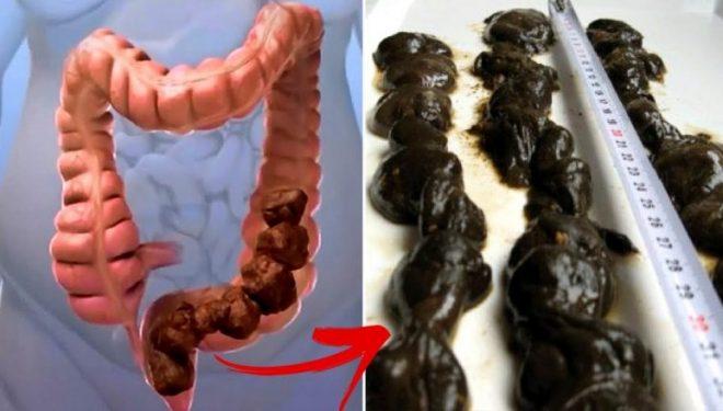 Në zorrë kemi deri 15 kg helme që shkaktojnë sëmundjet më të rënda: Ekspertët zbulojnë se si t'i nxjerrim nga trupi!