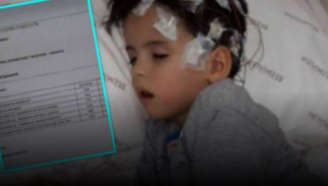 Tumor në hundë, probleme me zemër dhe epilepsi: Blerondi i vogël ka nevojë për ndihmë