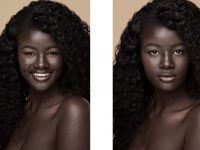 Ngjyra e lëkurës e shndërroi në yllin e mediave sociale! (Foto)
