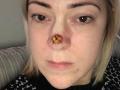 37 vjeçarja tregon se si njolla e vogël që iu shfaq në hundë, i rezultoi të ishte kancer