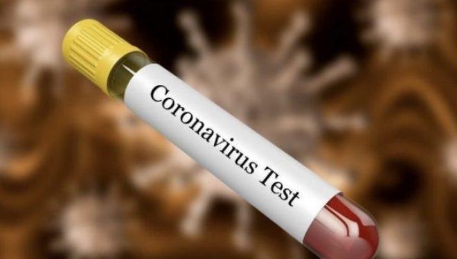 A shërohen ndonjëherë pacientët me koronavirus plotësisht?
