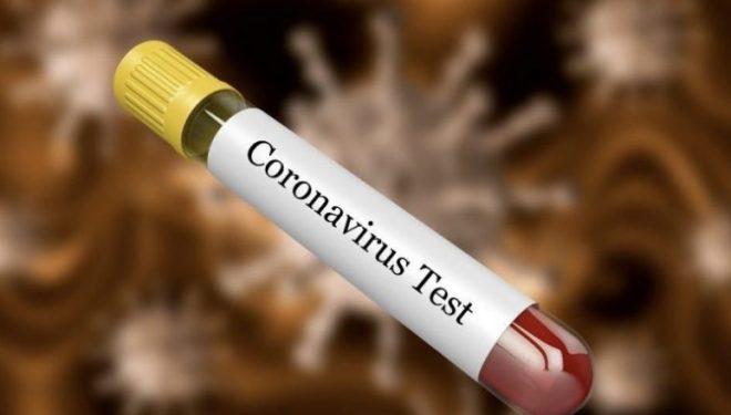 Dyshimet për koronavirus, 48 persona kanë shkuar për analiza sot në QKUK