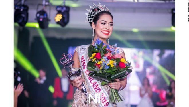 """""""Miss Anglia"""": Po e lë kurorën e bukurisë për të punuar si doktoreshë në ndihmë të të prekurve me koronavirus"""