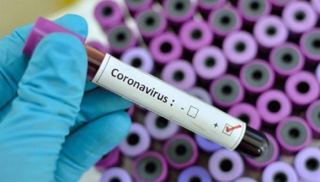 61 të shëruar dhe vetëm 1 rast i ri me koronavirus në Kosovë