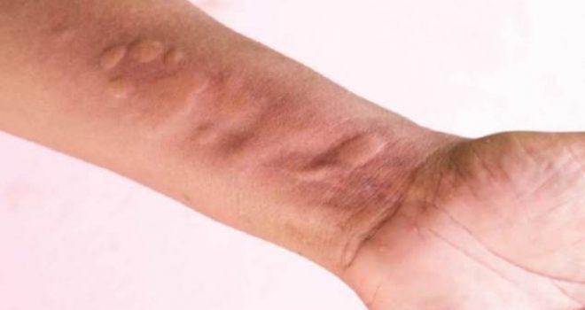 Mjekët shpjegojnë se çfarë ndodh me trupin tuaj nëse shfaqet kjo gjendje shëndetësore