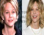 Meg Ryan, 'karamelja' e Hollywoodit që shkatërroi bukurinë natyrore me operacione – (Foto)