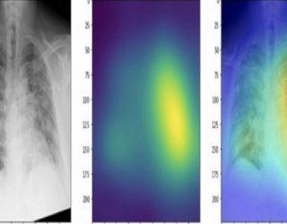 Shkencëtarët zhvillojnë mjetin që zbulon COVID-19 nga rrezet rëntgen me saktësi 83%