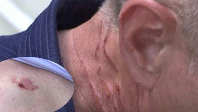 Pronari rrah punëtorin e tij 56-vjeçar